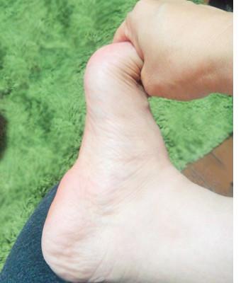 足底腱膜炎ストレッチ